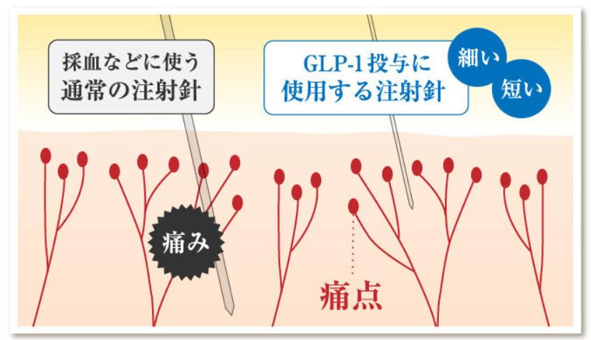 glp-1注射は痛い?